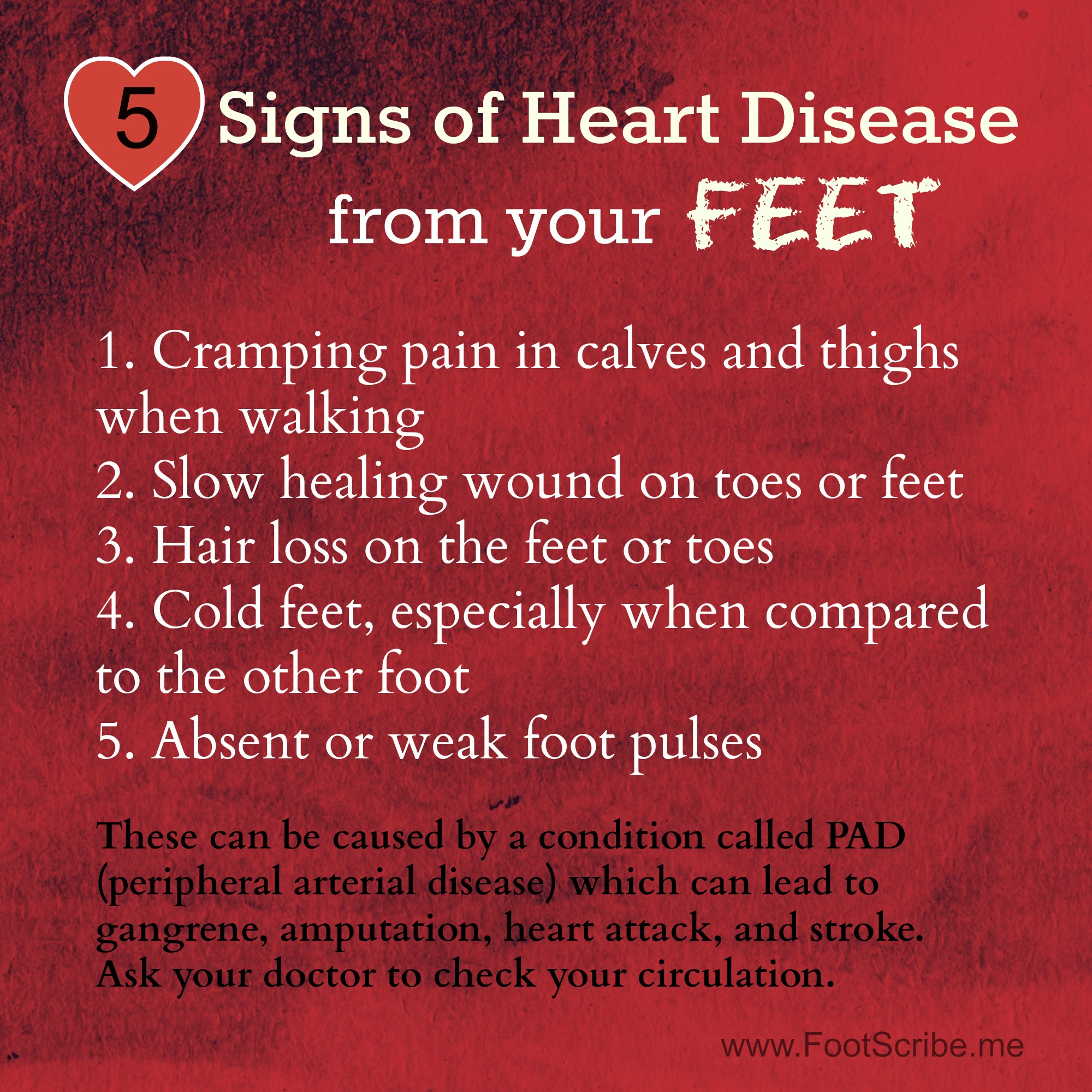 Signs Of Heart Disease