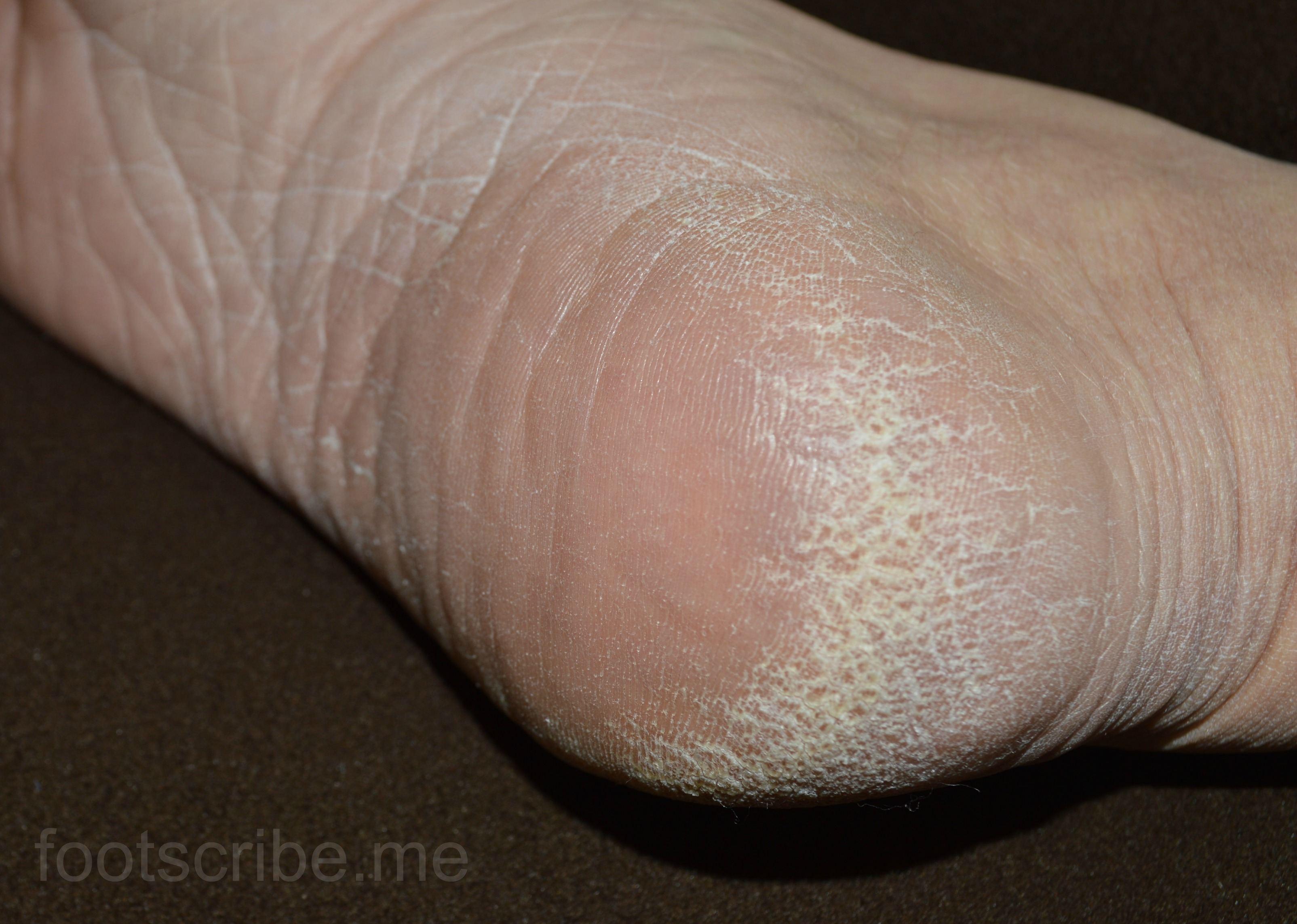 How to Quickly Heal Cracked Feet: Treatment and